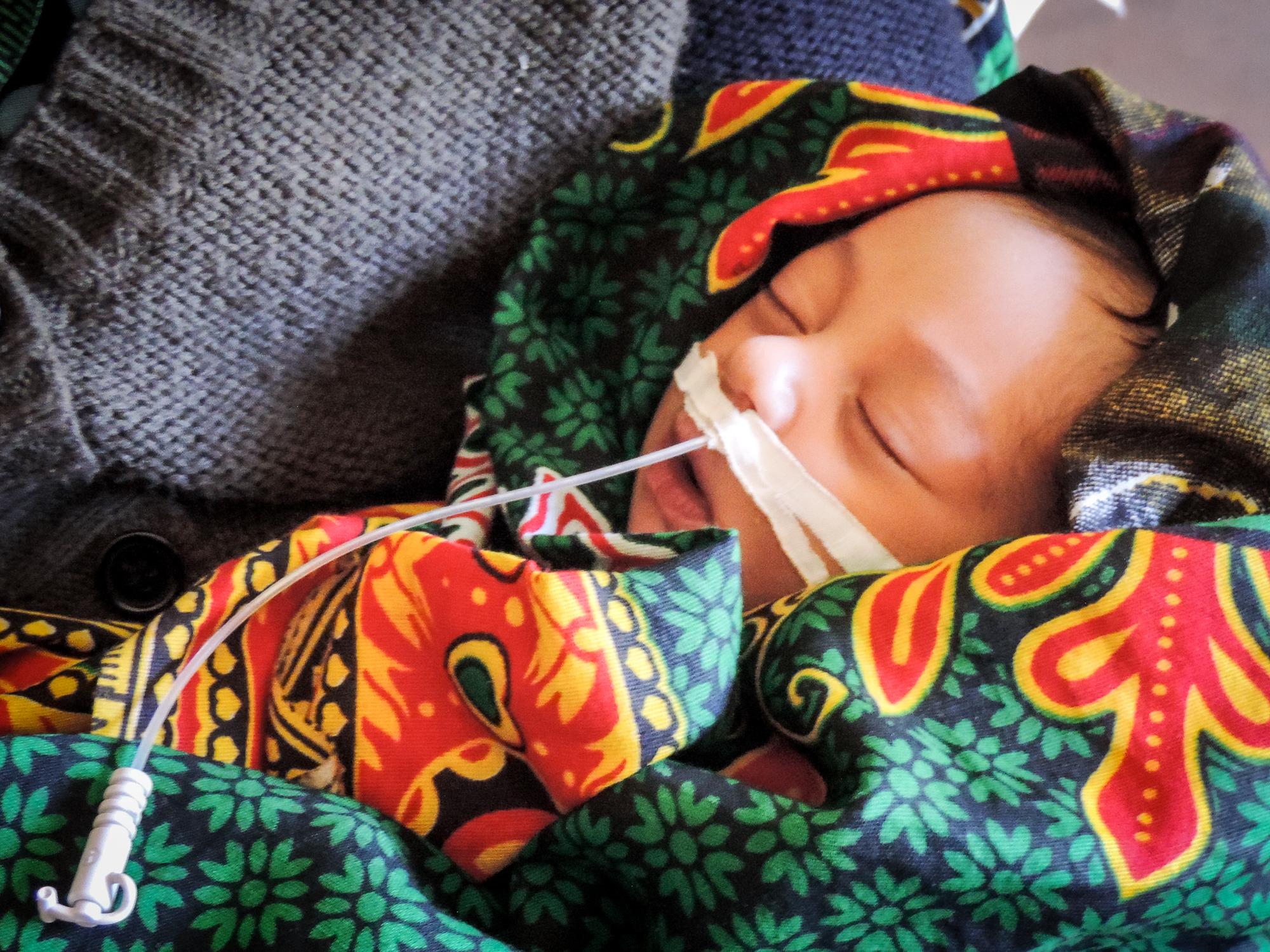 Dehydriertes Kind nach Durchfall